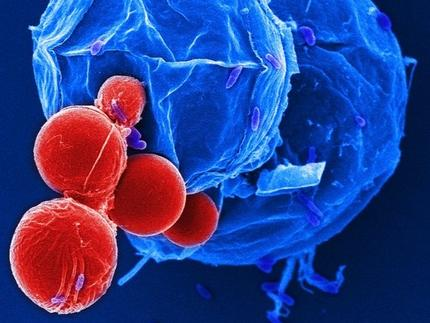 toxoplasmose therapie in der schwangerschaft
