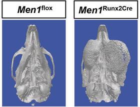 Zufallsfund: Mausmodell für seltene Kiefer-Tumoren entdeckt