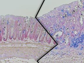 Colorectal cancer risk factors decrypted
