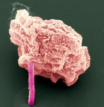 Superlaser enthüllen die Struktur von Schlüsselproteinen