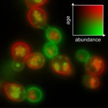 Timer-Farbstoff verrät das Alter von Proteinen