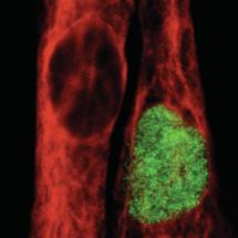 New Research Method Opens Door to Therapy with Human Muscle Stem Cells
